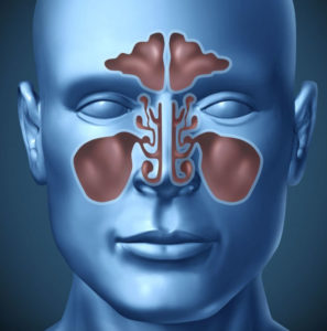 San Diego Sinus Doctor Diagram